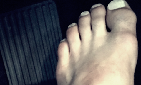 Rafael dos Anjos releases statement on UFC 196 with new photo of foot (PHOTO)