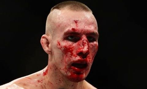 Rory MacDonald disappointed with Bellator